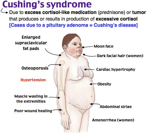 クッシング症候群