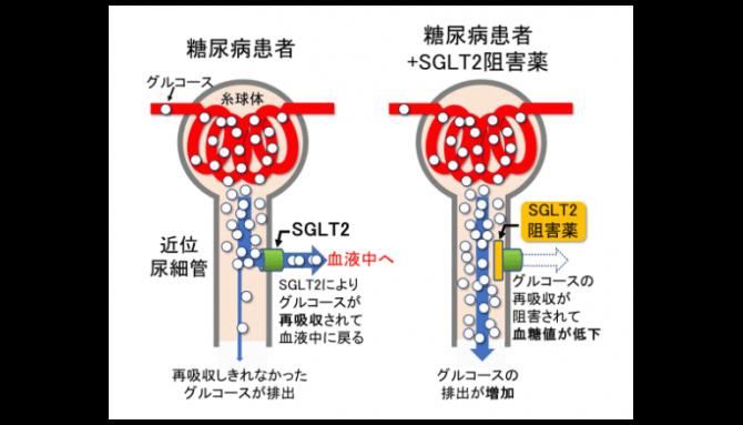 SGLT2阻害薬のしくみ