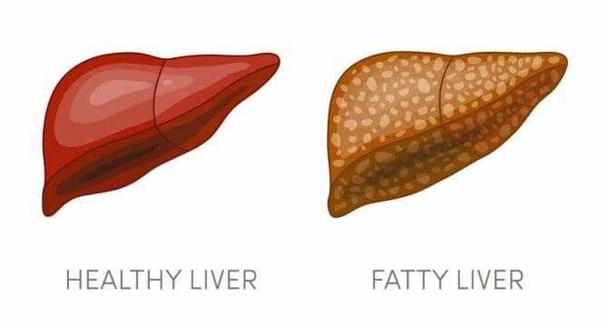 脂肪肝 NASH/NAFLD