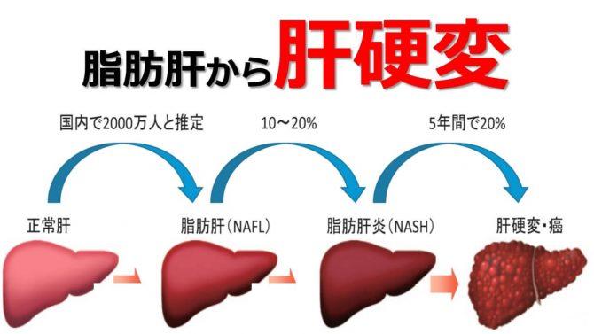 脂肪肝から肝硬変になる