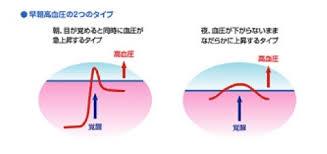 早朝高血圧の2つのタイプ
