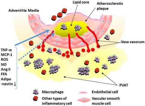 血管周囲脂肪組織と動脈硬病変の関係
